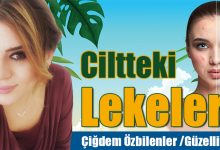 Photo of Ciltteki Lekeler