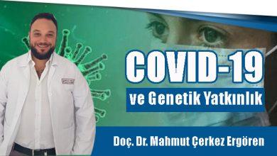 Photo of Covit-19 ve Genetik Yatkınlık