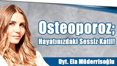 Photo of Osteoporoz; Hayatınızdaki Sessiz Katil!