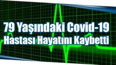 Photo of 79 Yaşındaki Covid-19 Hastası Hayatını Kaybetti